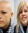 Implantes capilares no quirurgicos surgen como alternativa frente a la alopecia